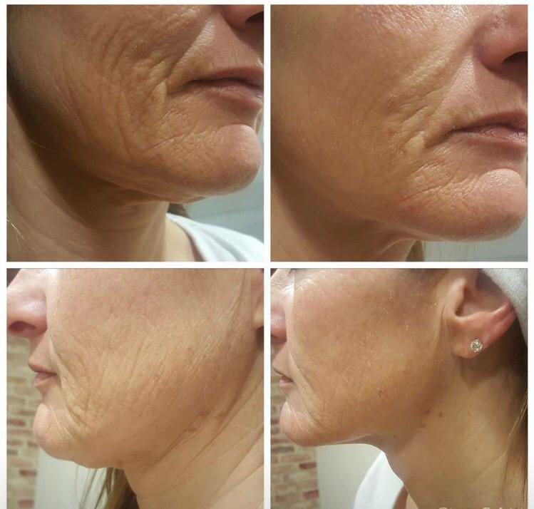 Chin & Face Lift